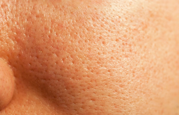 Amazing Home Remedies For Open Pores