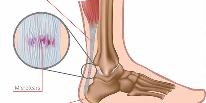 Effective Treatments For Achilles Tendonitis