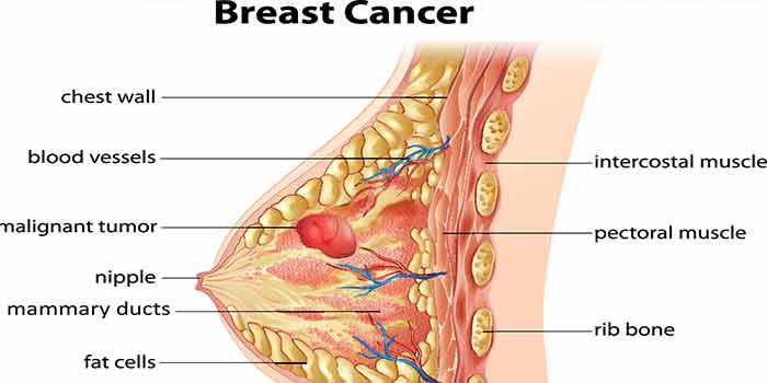 benign-breast-lumps