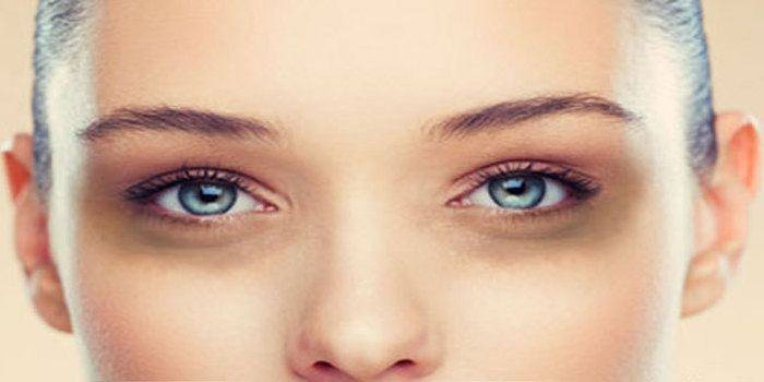 Under Eye Dark Circles