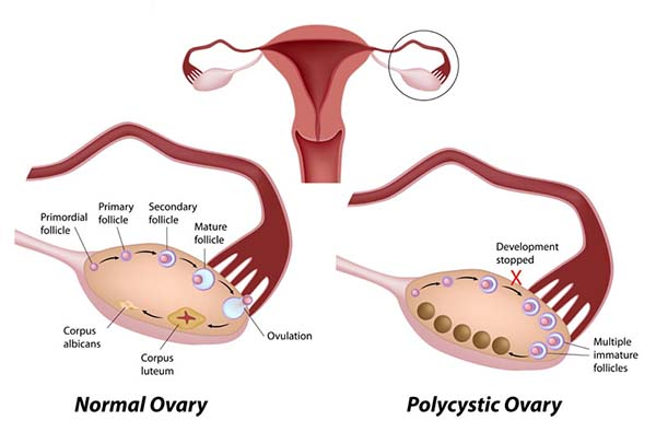 Clomid after ovarian drilling success