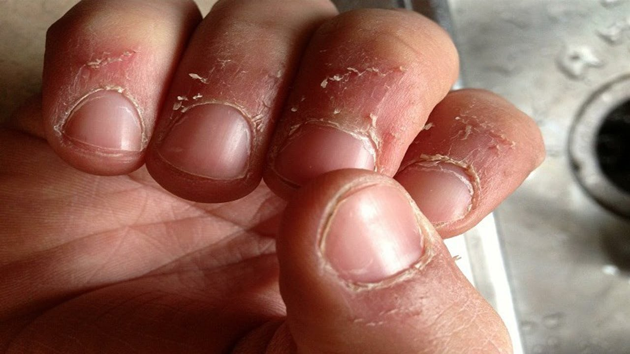 Top 5 Home Remedies For Hangnails - Natural Treatments And Cure For ...