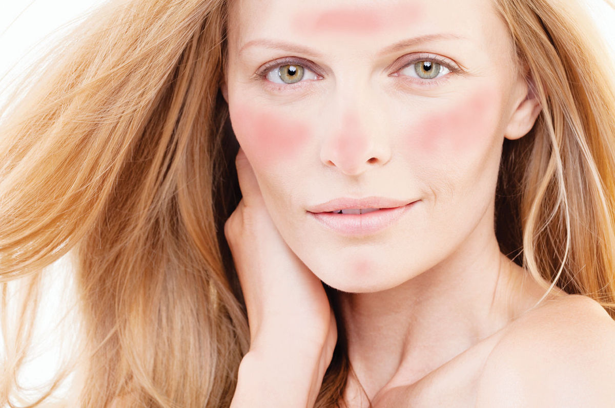 Causes And Treatments Of Rosacea