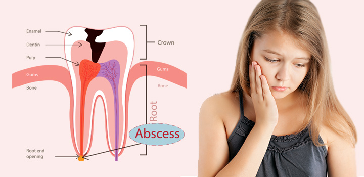 Tooth-Abscess-In-Children