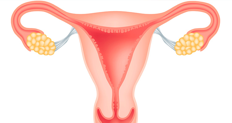 uterus-cancer