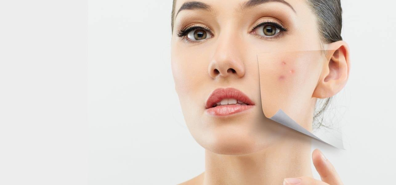 simple-remedies-for-treating-dry-skin-acne