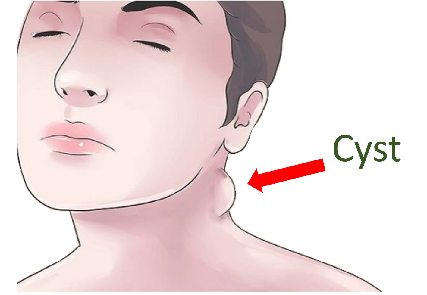 treatment-cysts