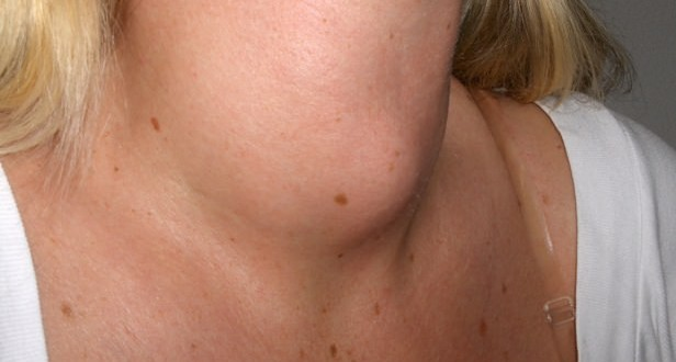 Best Home Remedies For Goiter Treatment