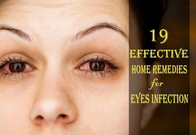 19-effective-home-remedies-for-eyes-infection