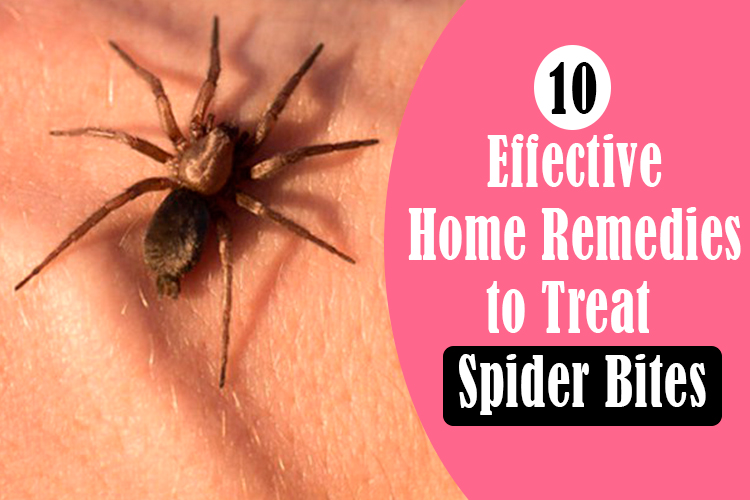 10-effective-home-remedies-to-treat-spider-bites
