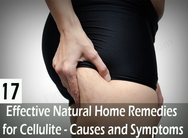 17-Effective-Natural-Home-Remedies-for-Cellulite---Causes-and-Symptoms