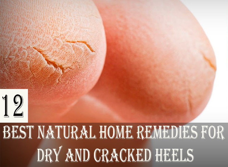 12-Best-Natural-Home-Remedies-for-Dry-and-Cracked-Heels